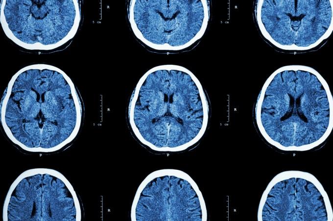 bigstock-Ct-Scan-Of-Brain-Show-Normal-B-93148016_9033255dfb4e2a45daba420b20c47c5e